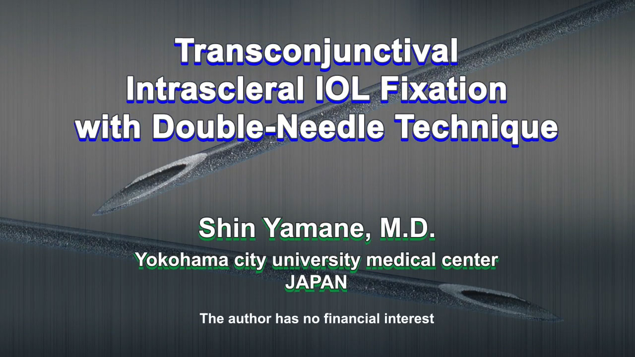 Transconjunctival Intrascleral IOL Fixation with Double-Needle Technique
