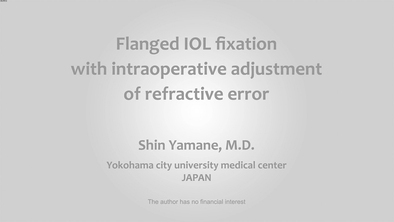 Flanged IOL fixation with intraoperative adjustment of refractive error