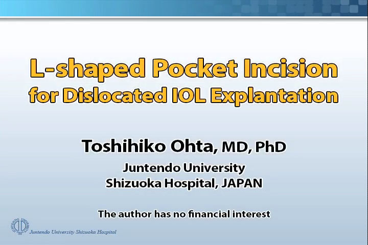 L-Shaped Pocket Incision for Dislocated IOL Explantation