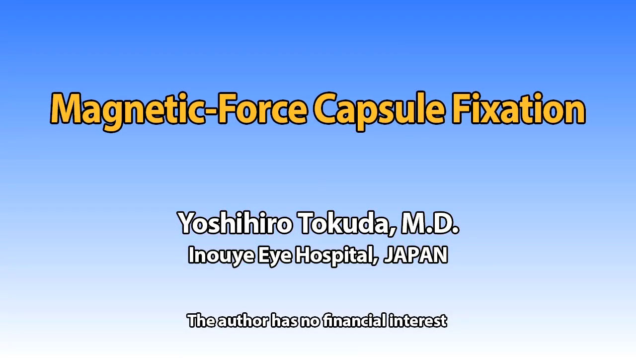Magnetic-Force Capsule Fixation